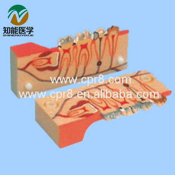 Tooth Decomposition Organization Model (Dental Model) BIX-L1003 MQ148 sagitally section model about tissue decomposition model for doctor patient communication model with magnetic