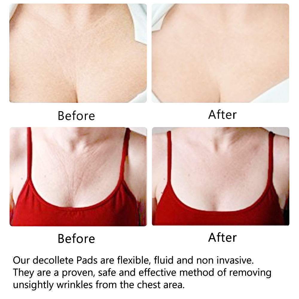 Silicone Reusable Anti Wrinkle Chest Pad Transparent Invisible Self Adhesive Chest Pad Eliminate Fine Lines Wrinkles 2