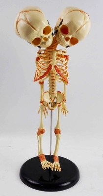 35cm A model of a babys two-headed skeleton Medical teaching AIDS for sketching human body 35cm A model of a babys two-headed skeleton Medical teaching AIDS for sketching human body