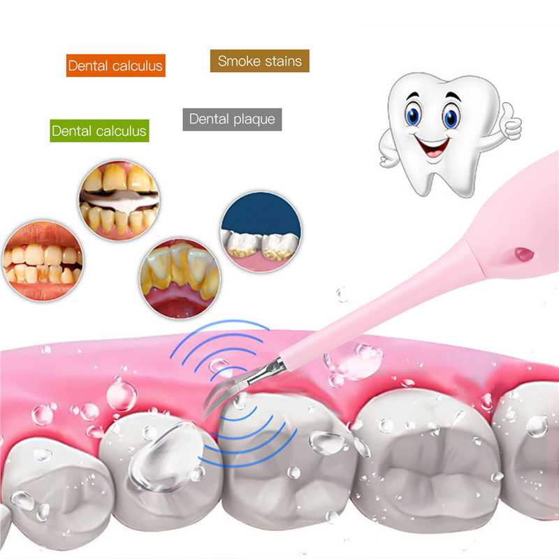 Image 4 - Electric Calculus Remover Teeth Whitening Cleaning Dental Tartar Scraper Tooth Polisher Stain Eraser High Frequency Vibration 38-in Teeth Whitening from Beauty & Health