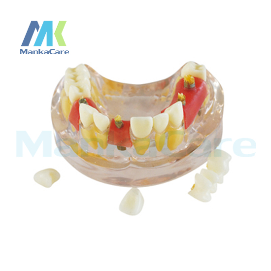 Manka Care - Transparent model shows normal root, implant in the mouth Oral Model Teeth Tooth Model the teeth with root canal students to practice root canal preparation and filling actually
