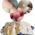 10 pcs/2 caixa Espinho Verrugas Plantares Calos Médica Gesso Verrugas Removedor, dor patch alívio Terapêutico Pés de Milho remoção