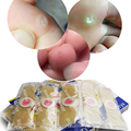 10pcs/2box Medical Calluses Plantar Warts Thorn Plaster Warts Remover,pain relief patch Therapeutic Feet Corn Removal