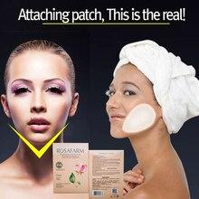 12 pcs/6 שקיות פנים גמילה הרזיה מוצר הרזיה מפחית פנים שומן הסרת צלוליט הלחיים סקיני V קו פנים מדבקה