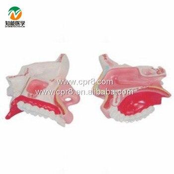 BIX-A1051 The Nasal Anatomy Model  MQ119