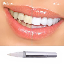 Best Value Smile Tooth Whitening Pen Great Deals On Smile Tooth Whitening Pen From Global Smile Tooth Whitening Pen Sellers 1 On Aliexpress