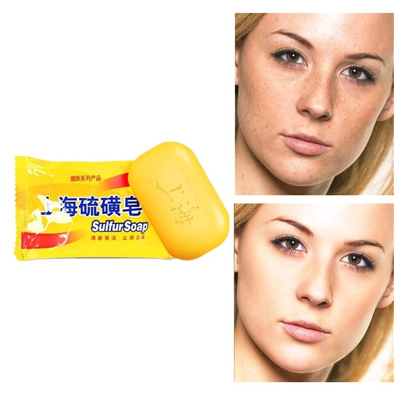 Sales Hot Sulfur Soap Skin Care Treatment Natural Skin Soap Blackhead Remover Acne Treatment Control Oil