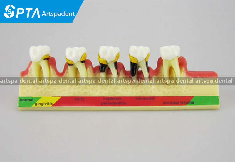 Classification of periodontal diseases teeth model Dental patient communication model process of periodontal disease dental pathology model anatomical model teeth model dental caries periodontal disease demonstration model gasen den050