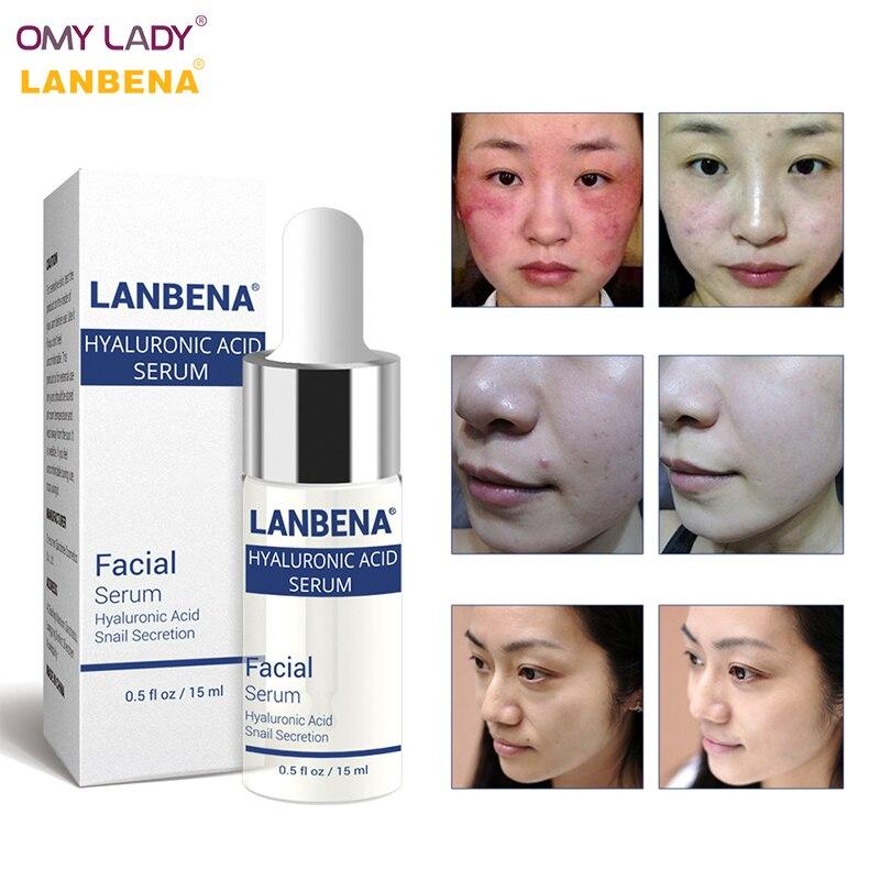 OMY LADY LANBENA Hyaluronic Acid Essence Snail Serum Face Cream Moisturizing Acne Treatment Skin Care Repair Whitening AntiAging
