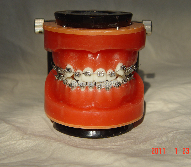Senior Wax Dike Orthodontic Practice Model,Wax Dike Teeth Orthodontic Practice Model,Wax Dike Wrong Jaw Correction Model teeth orthodontic model metal braces teeth wrong jaws model demonstration tooth orthodontic training model
