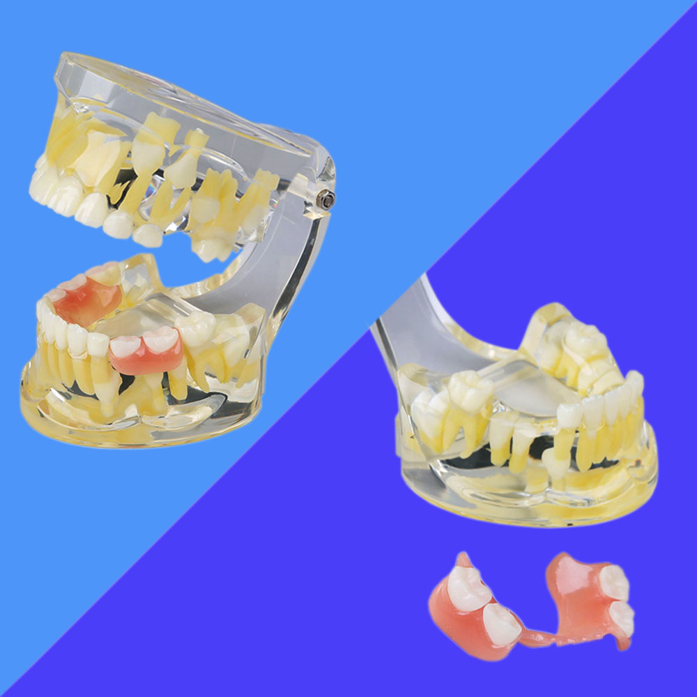 1 piece Dental Deciduous/Permanent Teeth Alternating Model with Retainer for Dentistry Teaching soarday children primary teeth alternating transparent model dental root clearly displayed dentist patient communication