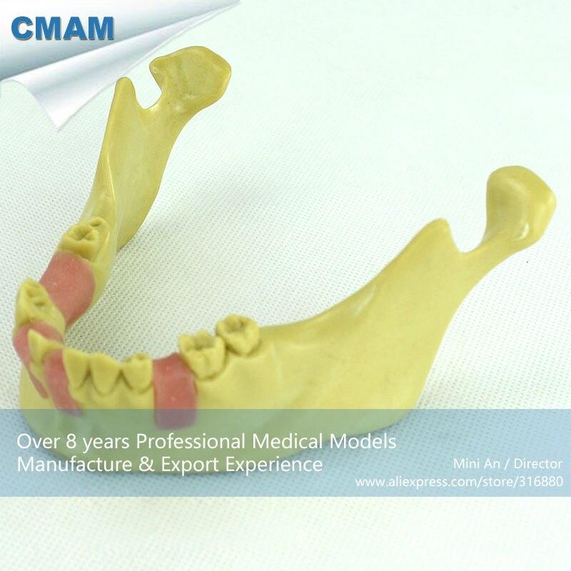 12619 CMAM-IMPLANT08 Dental Implant Missing Teeth Training Model, Lower Jaw Model 12588 cmam tooth15 oral dental cleft lip suture training model soft lip model 5pcs pack