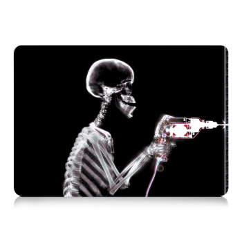 MTT black Skeleton Case for MacBook 1