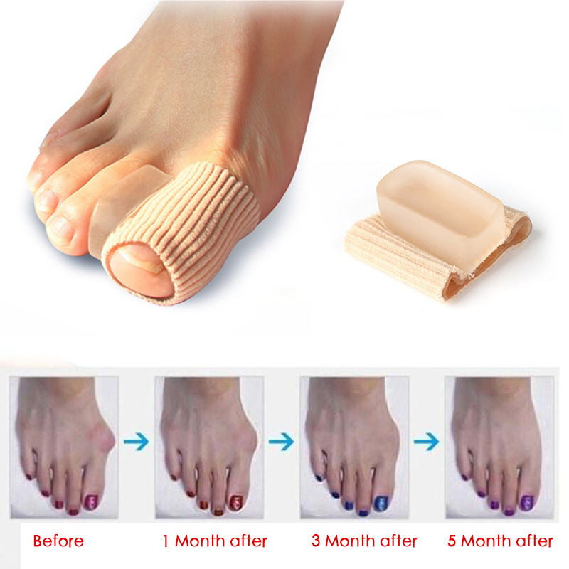 1PCS Feet Care Special Hallux Valgus Thumb Orthopedic Deliver Braces Silicone Foot Care Gel Protector Toe Separators Straightene