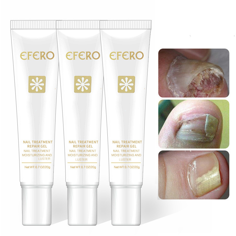 Feet-Care Nail-Fungus-Removal-Gel Essence-Tslm1 Nail-Treatment Nails Repair Anti-Infection