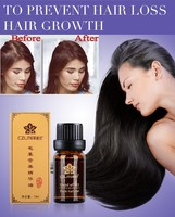 Grow Hair Faster Regrowth Hair Growth Products Hair Loss Products Natural With No Side Effects 2