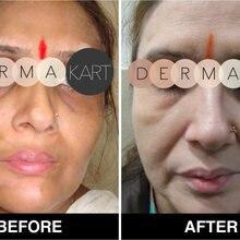 MONOBENZONE 20% белый отбеливающий крем для лица тускнеет тон кожи очищает пятна и пигментные пятна