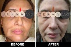 MONOBENZONE 20% белый отбеливающий крем для лица отбеливающий тонус кожи очищает пятна и возрастные пятна