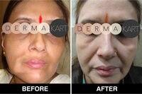 MONOBENZONE 20% белый отбеливающий крем для лица FADES тон кожи очищает пятна и возрастные пятна
