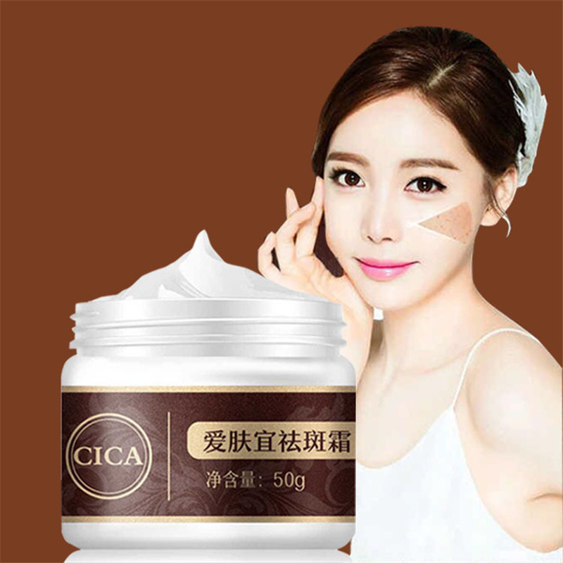 50g Powerful Whitening Freckle Cream Quick Remove Speckle Melasma Pigment Whitening Cream Melanin Anti Acne Spots Face Cream