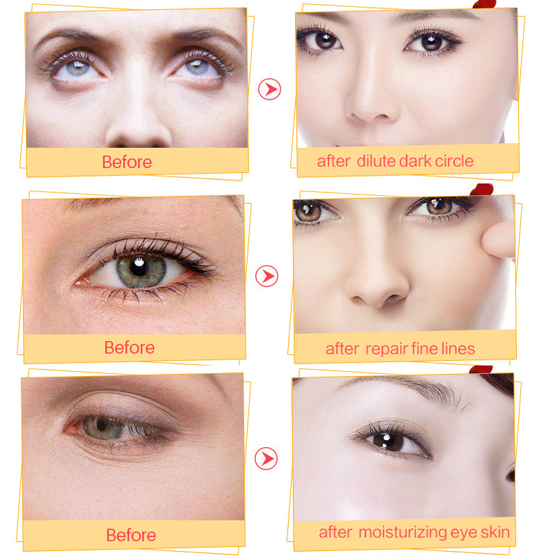 5 Pack EFERO Collagen Gold Eye Mask Eye Patch Mascarilla Parches Ojos - Cuidado de la piel - foto 5