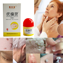 Mole & Skin Tag Repair Solution Painless Dark Spot Face Wart Freckle Cream Oil  D182