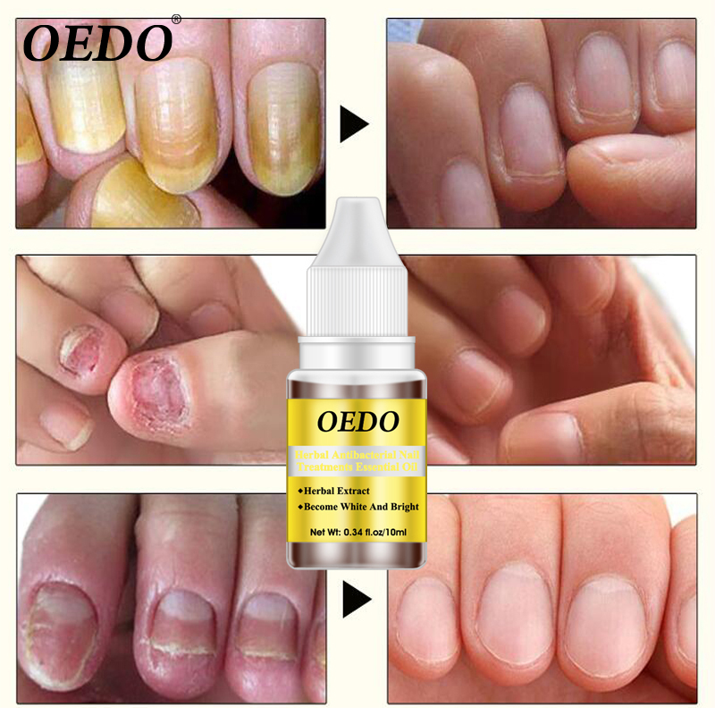 Herbal Antibacterial Nail Treatments Essential Oil Herbal Extract Nail Fungus Art Repair Tools Foot Nail Care Improve Infection 2
