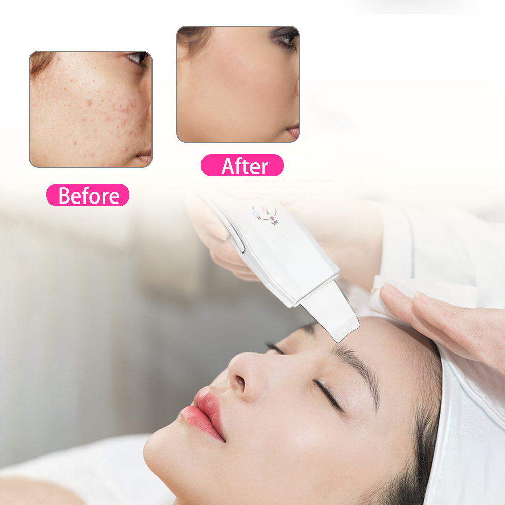 Image 4 - Beauty Star Ultrasonic Skin Scrubber Massager Machine Facial Skin Cleaning Anion Face Skin Care Ultrasound Peeling Skin Scrubber-in Skin Scrubber from Beauty & Health