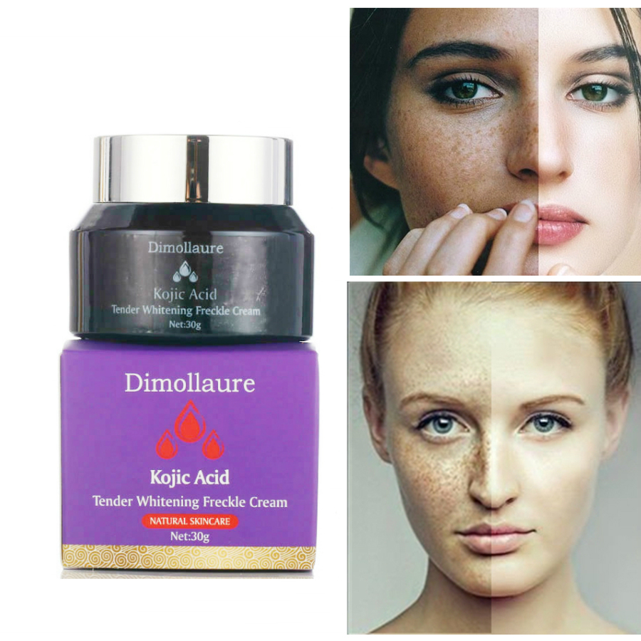 Dimollaure Kojic acid Retinol Whitening face Cream pigment melanin Removal Age Spots Freckles Melasma dark spots sunburn scars