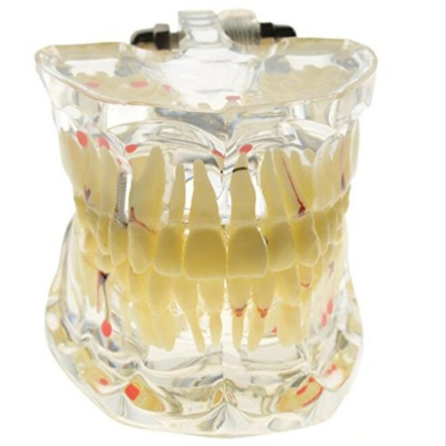 קידום שיניים לימודים שקוף למבוגרים הפתולוגי שיניים דגם שיניים מעבדה ציוד רופא שיניים הוראה