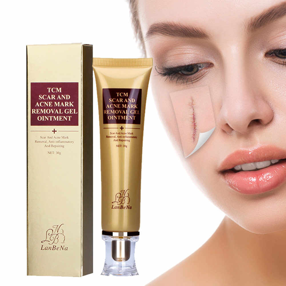 Ekstrak Ginseng Scar Removal Gel Perawatan Jerawat Mengecilkan Pori-pori Gel Bleaching Krim Whitening Pelembab Wajah Day Cream J75