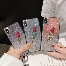For Huawei P20 P30 P10 Lite Case Luxury Glitter Rose Hard Cover Huawai Mate20 Pro Mate 20 10 Mrs Style Shining Bling phone Shell