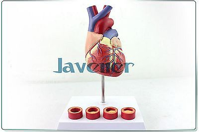 1:1 Life Size Human Anatomical Anatomy Heart Medical Model +Thrombosis Model 1 1 life size dog ear anatomical model animal anatomy medical teaching resources