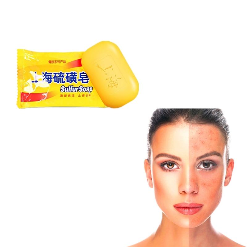 85g Sulfur Soap Face Care Acne Treatment Black Head Clean Anti Fungus Anti-inflammatory Handmade Soap