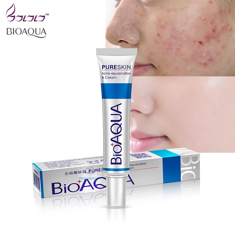 New Face Cream Whitening Skin Care Anti Acne Treatment Cream Oil Control Moisturizing Acne Scar Remover Pores Bioaqua Acne Cream