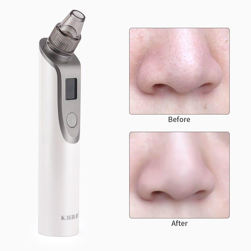 facial cravo acne removedor ferramenta luz azul