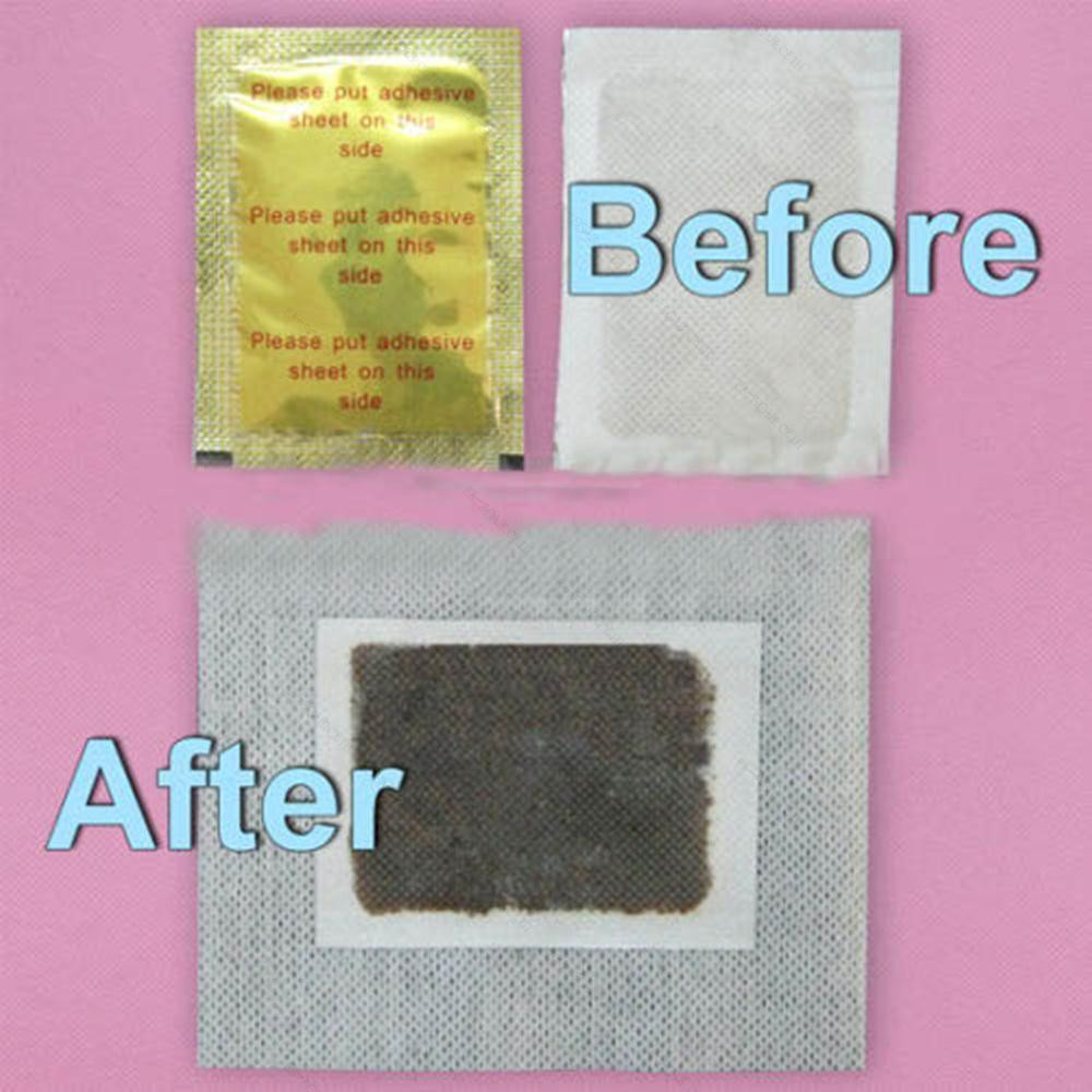 20pcs (10 foot pads + 10 adhesive sheets) Cleansing Detox Foot Pad Herbal Patch Detoxify Toxins Adhesive Keeping Fit Health Care 3