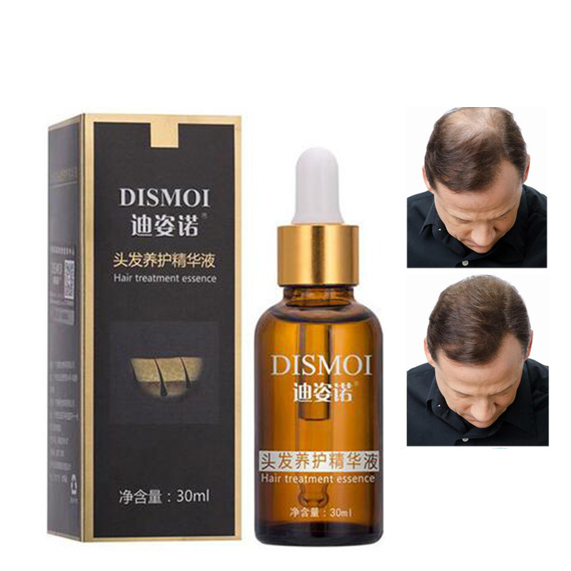 Hair Loss Products Natural With No Side Effects Grow Hair Faster Regrowth Hair G