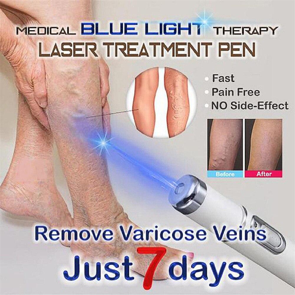 Blau Licht Therapie Laser Behandlung Stift Gesichts Massager Akne Narbe Falten Entfernung