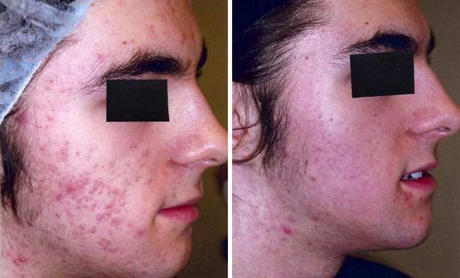Nilac A For Acne Pimples Skin Care Cream Gel Adapalen E Clin 20g Aliexpress