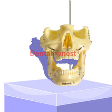 high quality Dental model 2016  Anchor Implant Screw Practice Model