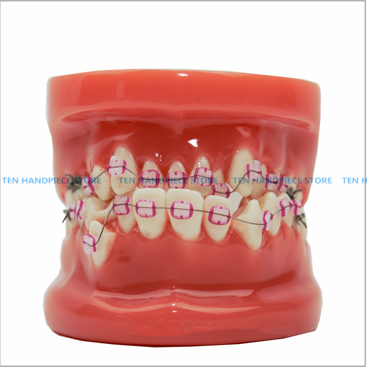 2018 good quality 1 Piece dental tooth Orthodontists model Malocclusion models Teaching model good quality dental removable dental model dental tooth arrangement practice model with screw teaching simulation model