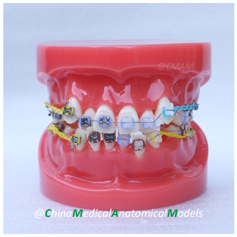 13020 DH201-2 Dentist Gift Oral Dental Ortho Metal AND Ceramic Model, China Medical Anatomical Model dh202 2 dentist education oral dental ortho metal and ceramic model china medical anatomical model