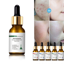 MayCreate 30ml Hyaluronic Acid Shrink Pores Serum Face Anti Acne Vitamin C Liquid Whitening Facial Treatment