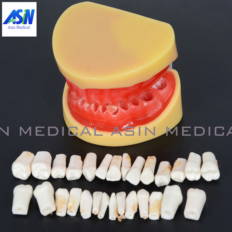 Dental All teeth Removable Standard Teeth Tooth Model 28 pcs teeth student learning model 1 pcs dental standard teeth model teach study