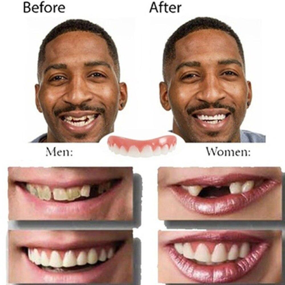 Clareamento Dos Dentes Natural Folheados Dental Higiene Oral Silicone