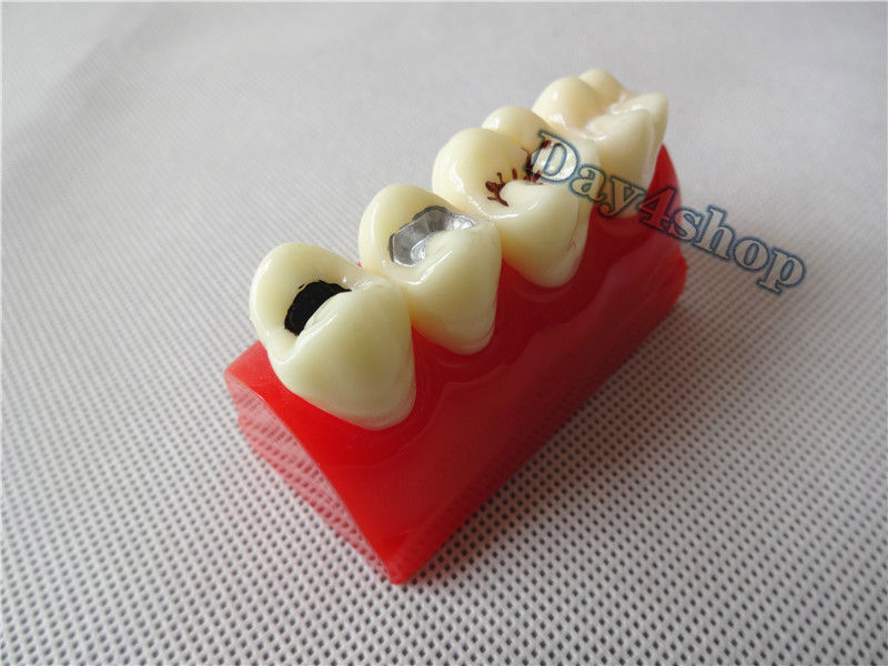 Dental Pit and Fissure Sealing Treatment Teeth Tooth Study Learn Model pit psb13 c2