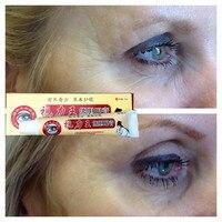MIYUELENI Cassia seed Firming eye essence for nourishing tightening care dark circles 25g/Pcs Creams