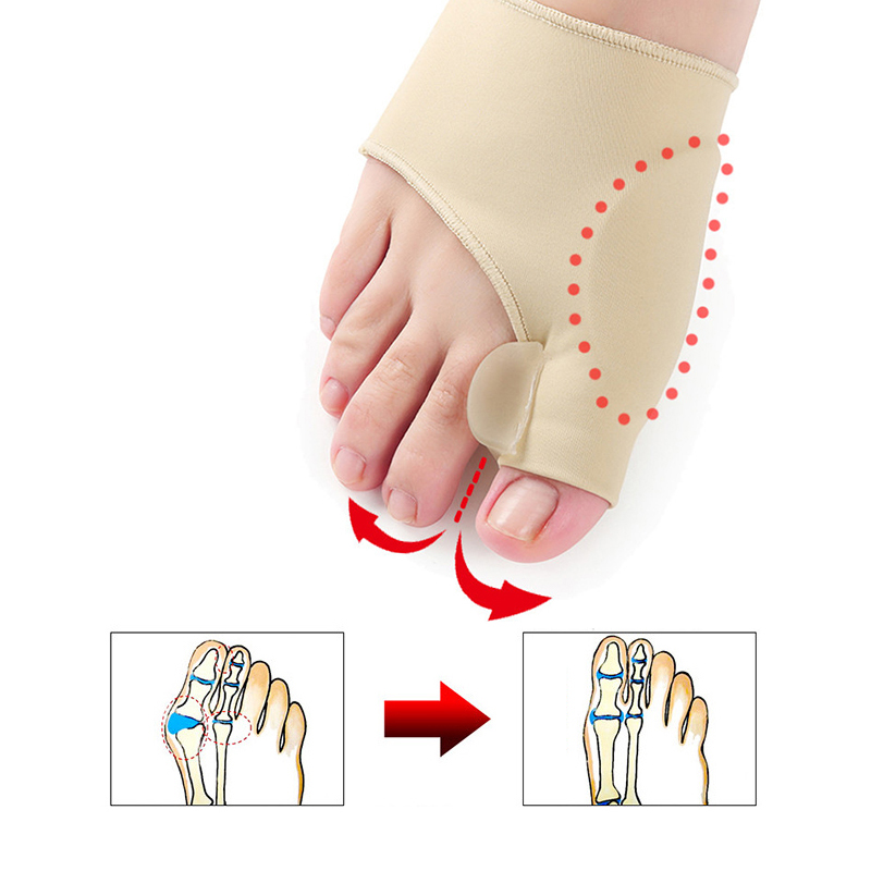 1 Paar Toe Separator Hallux Valgus Corrector Füße Knochen Daumen Teller Toe Separator Pediküre Socken Schmerzen Relief Bunion Gerät Vertrieb Von QualitäTssicherung Haut Pflege Werkzeuge