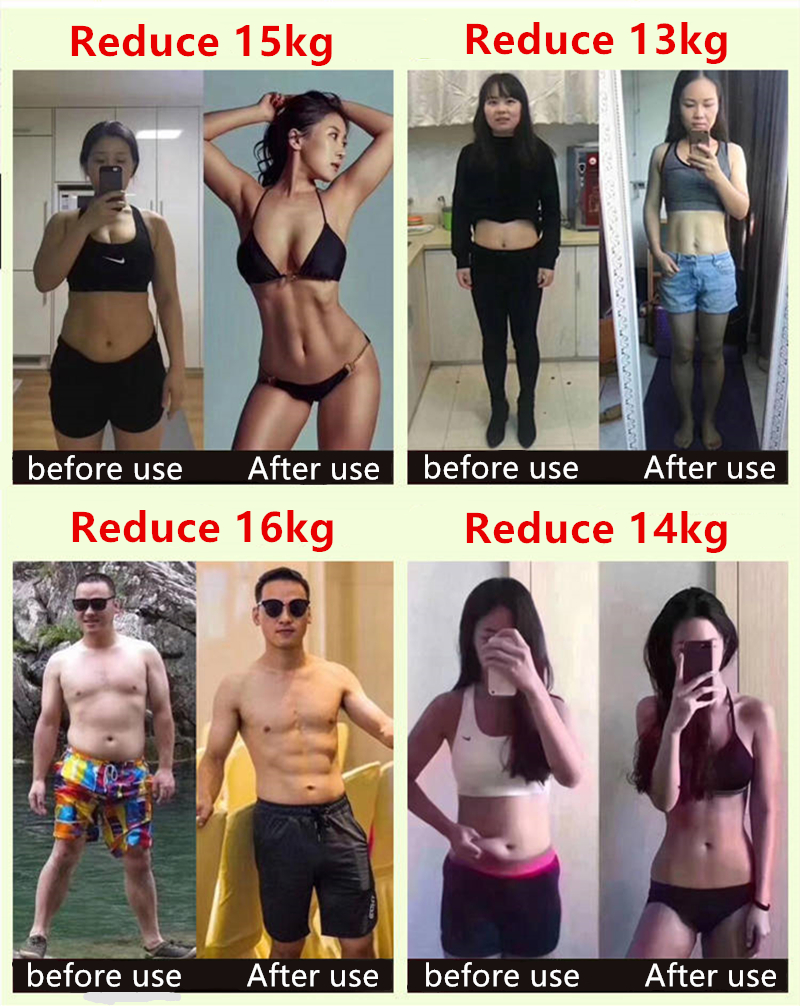 Weight loss slimming products burn fat to remove cellulite detox diet fast weight loss, non-slim patch to lose weight